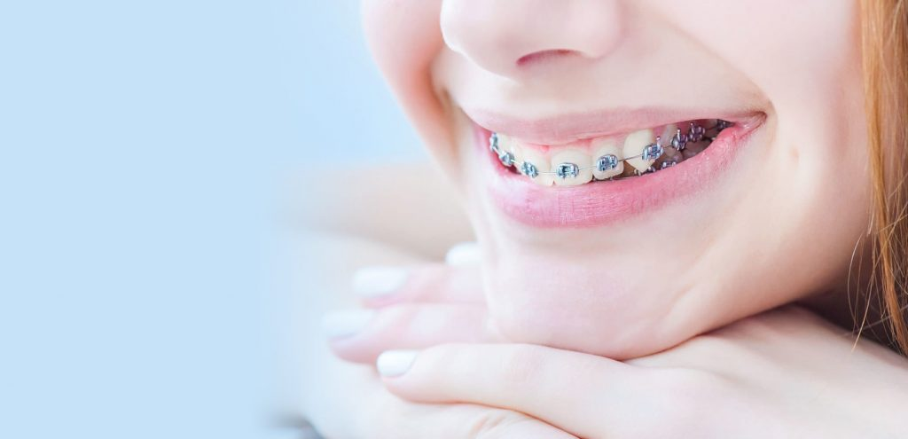 kids-braces-in-woden
