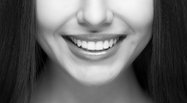 Best-teeth-whitening-woden-canberra