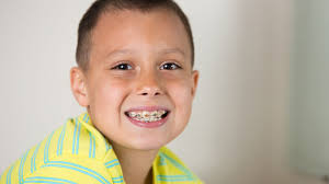 braces-for-children-in-woden-acacia-dental
