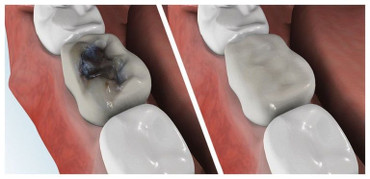 White tooth fillings, White Dental Fillings