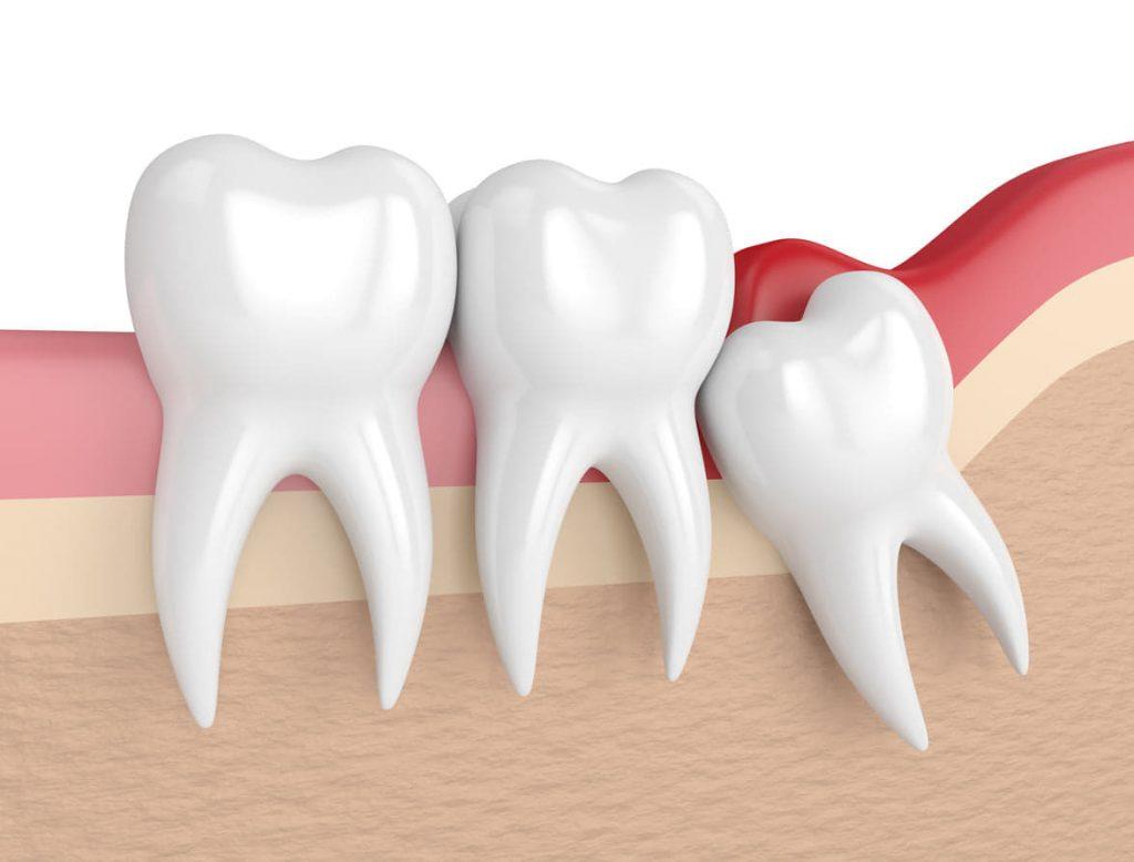 wisdom teeth removal canberra
