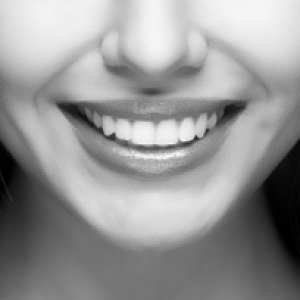 Dental Implants in Canberra, Your Guide to Dental Implants in Canberra